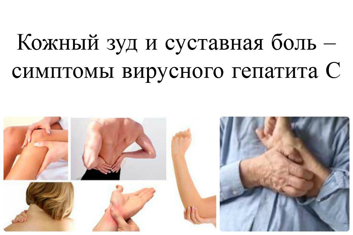 Гепатит у беременной, ДокторГепатит