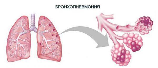 Медики также называют данную болезнь очаговой пневмонией. Чаще всего она диагностируется у пациентов пожилого и детского возраста