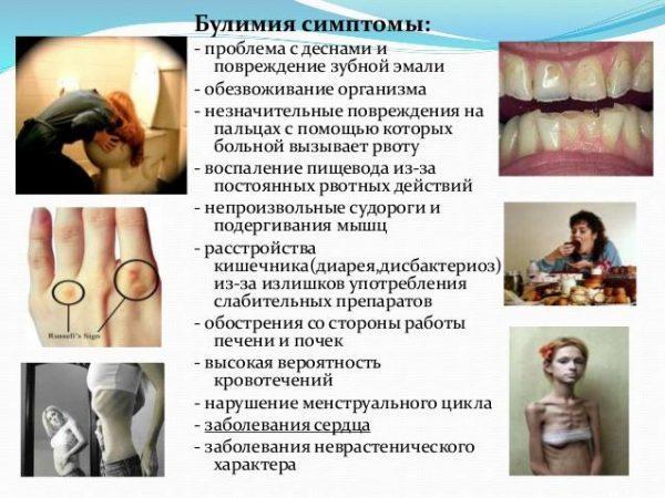 Основные симптомы булимии