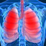 Пневмония — симптомы у взрослых