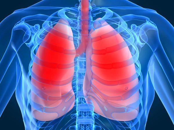 Пневмония - симптомы у взрослых