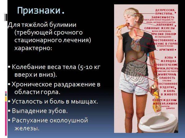 Признаки булимии