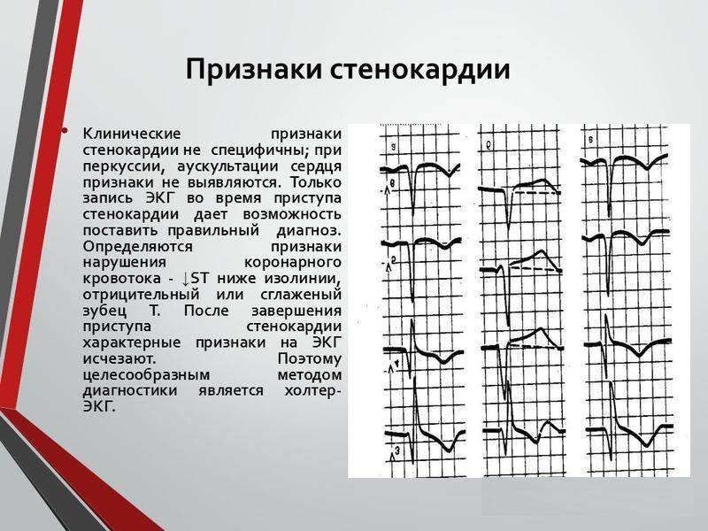 Признаки стенокардии - MedExplorer - информационный сайт о ...