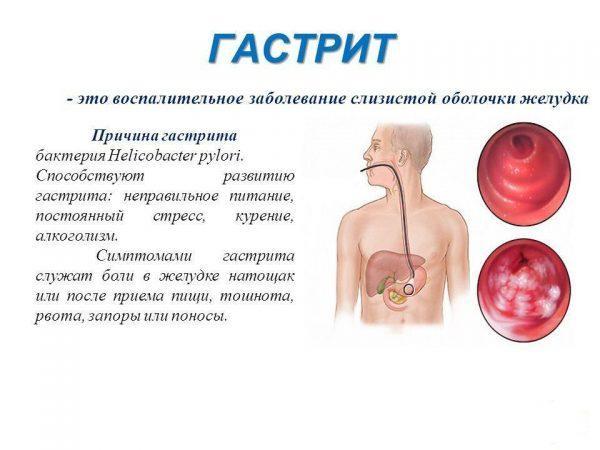 Причины и симптомы гастрита