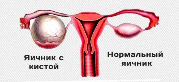 Разница между нормальным яичником и яичником с кистой