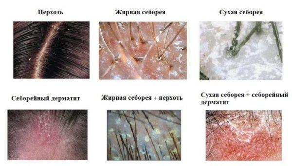 Разновидности себореи