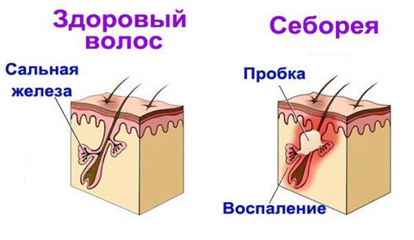 Себорея печень