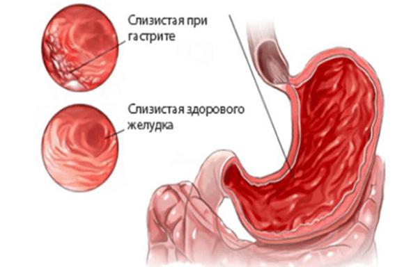 Слизистая оболочка желудка при гастрите