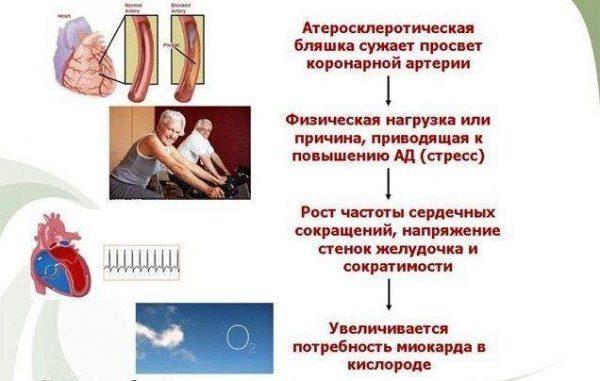Стенокардия. Факторы риска и профилактика