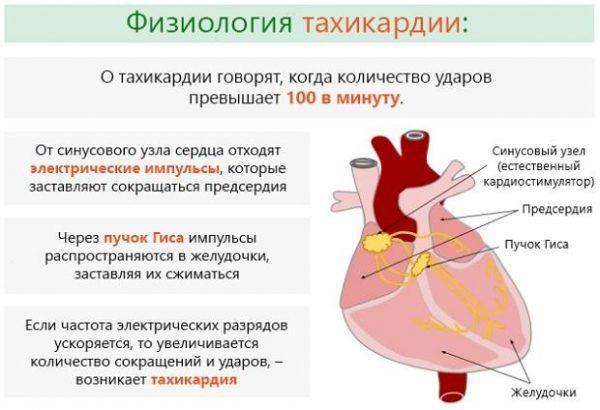 Сущность тахикардии