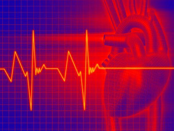 Что значит тахикардия сердца