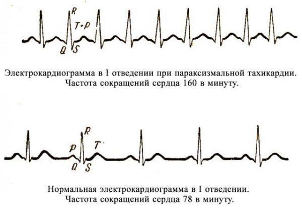 Электрокардиограмма при параксизмальной тахикардии
