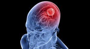 Опухоли