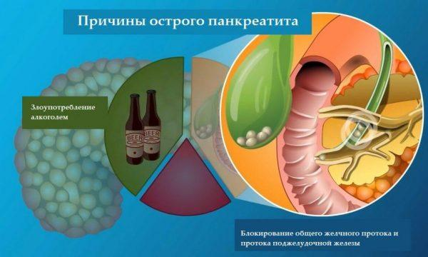 Причинами острого панкреатита могут выступать злоупотребление алкоголем и камни в желчных протоках
