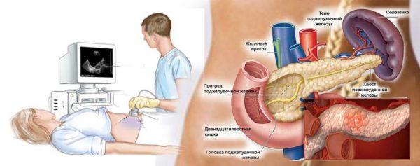УЗИ при панкреатите
