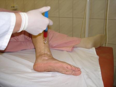 Лечение эритромелалгии уколами
