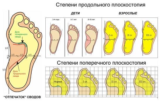 Степени плоскостопия