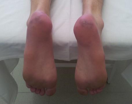 Эритромелалгия