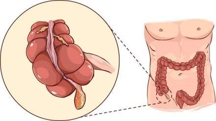 Аппендицит - воспаление аппендикса