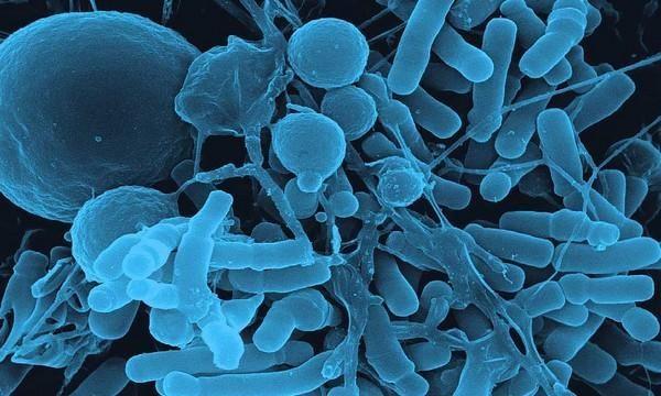 Патогенные микроорганизмы (вирусы, бактерии и т.д.) являются причиной кишечной инфекции