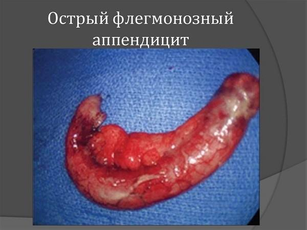 Как выглядит острый флегмонозный аппендицит