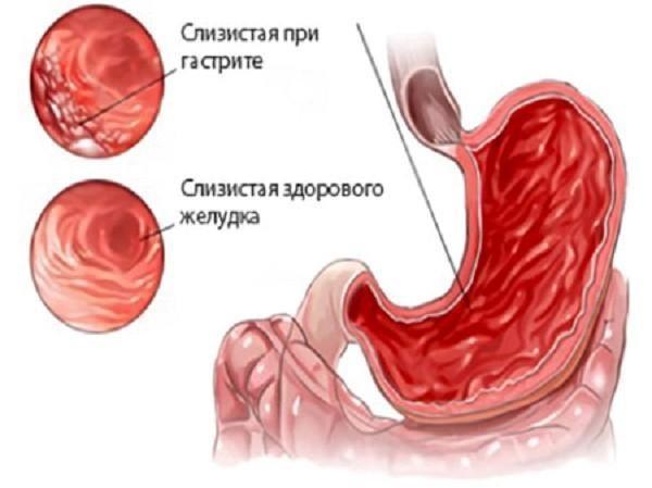 Как выглядит слизистая желудка при гастрите