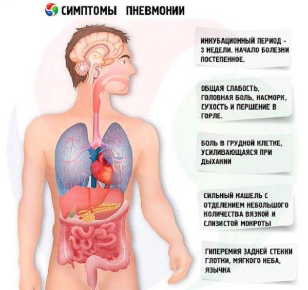 Как распознать пневмонию