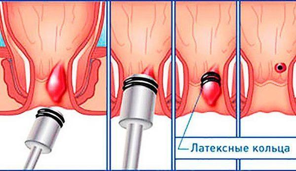 Лечение геморроя с помощью латексных колец