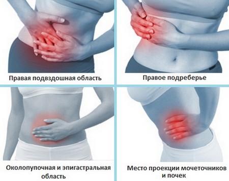 Место локализации боли при аппендиците