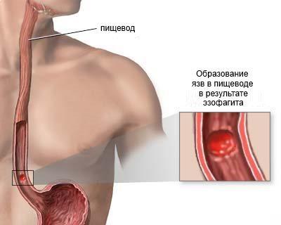 Образование язв в пищеводе в результате эзофагита