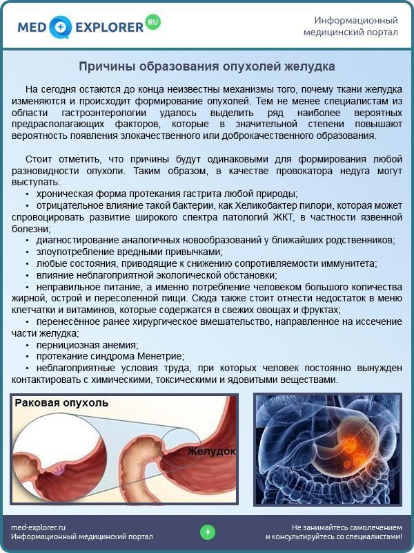 Причины образования опухолей желудка