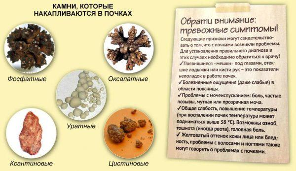 Симптомы наличия камней в почках