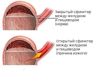 Схематичное изображение изжоги