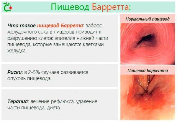 Что такое болезнь Баррета