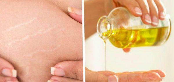 Масло помогает избавиться от растяжек