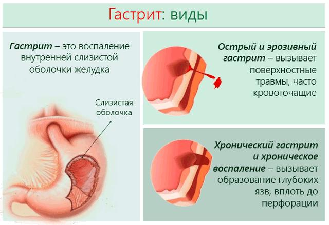 Гастрит – воспаление слизистой желудка – может быть острым и хроническим