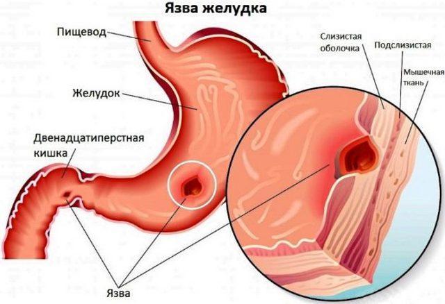 Язва желудка – более опасное заболевание, чем гастрит, поскольку воспалительный процесс поражает глубокие слои слизистой оболочки желудка