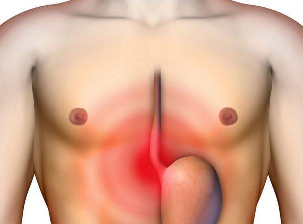 Болезни, поражающие желудок, негативно сказываются на всём организме