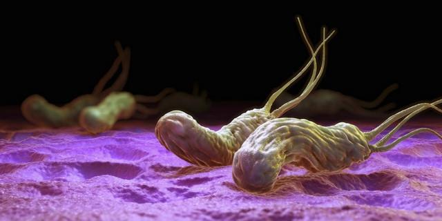 Чаще всего язва возникает из-за заражения бактериями Helicobacter pylori или неправильного питания