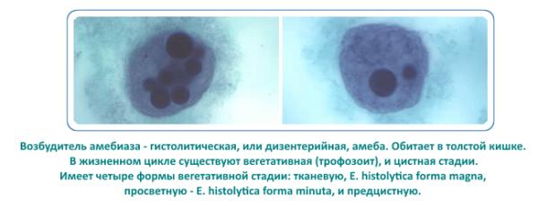 Амеба - возбудитель амебиаза