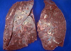 Внешний вид легких больного саркоидозом
