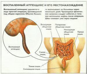 Воспаленный аппендикс