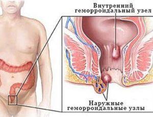 Геморрой может быть внутренним и наружным