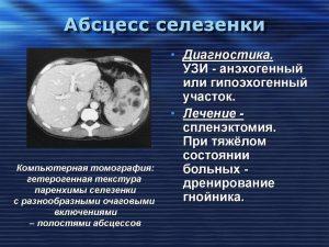 Данные КТ, рекомендации по диагностике и лечению абсцесса