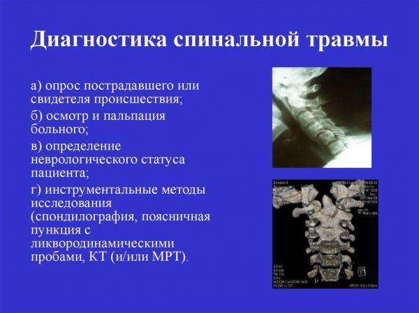 Диагностика спинальной травмы