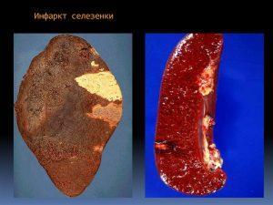 Зоны обескровливания и кровоизлияния при 2 разных видах патологии