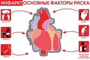 Инфаркт - основные факторы риска