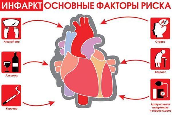 Инфаркт — основные факторы риска
