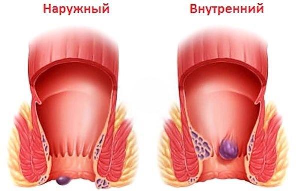 Лечение простатита клизмой с перекисью