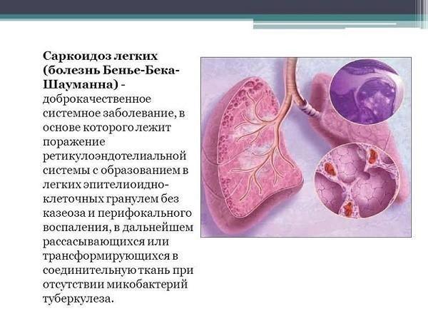 Как лечить саркоидоз